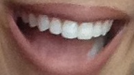 How to Whiten your Teeth Naturally at Home- My Top Methods that Actually Work!!